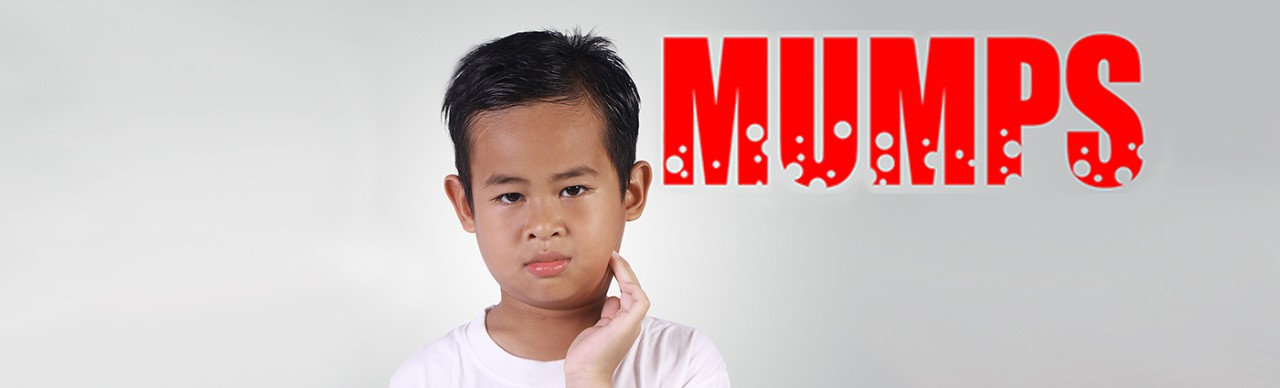 Asian boy with mumps